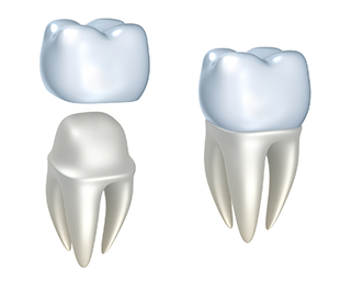 bigstock-Dental-crowns-and-tooth-isola-39561136