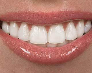 bigstock-Teeth-5105395